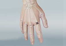 Artificial Finger Joint Replacement