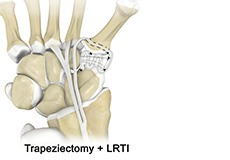 LRTI (Ligament Reconstruction and Tendon Interposition) for Thumb CMC Arthritis